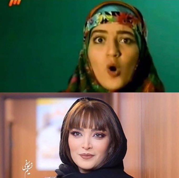 تغییر چهره بازیگر زن ایرانی بعد از عمل +عکس