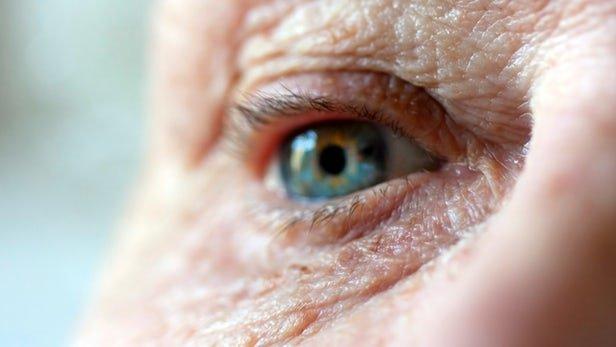 تشخیص اولیه آلزایمر با تست ساده هوش