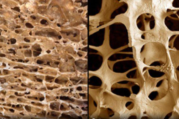 تشخیص زودهنگام بیماری پوکی استخوان از روی تراشههای ناخن
