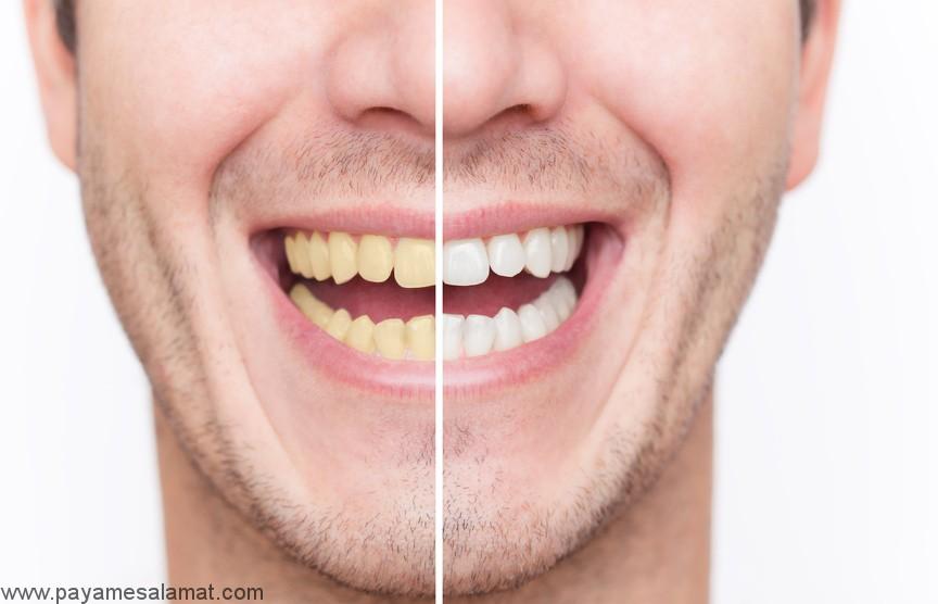 بدون هزینه دندانهای خود را مثل برف سفید کنید