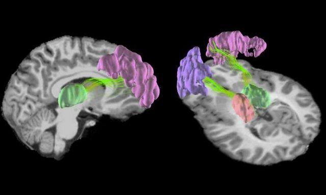 تغییر ساختار مغز با فوتبال بازی کردن