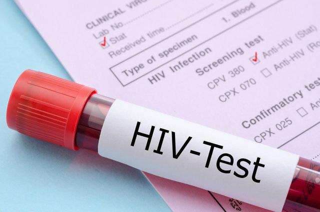 علائم HIV در زنان