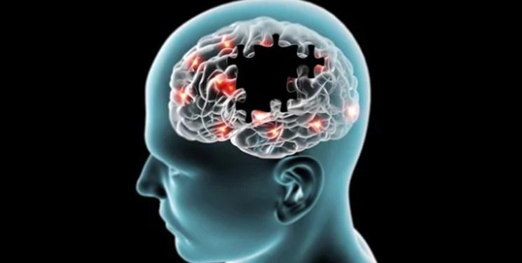 تعلیم مغز راهی برای درمان سکته مغزی و پارکینسون
