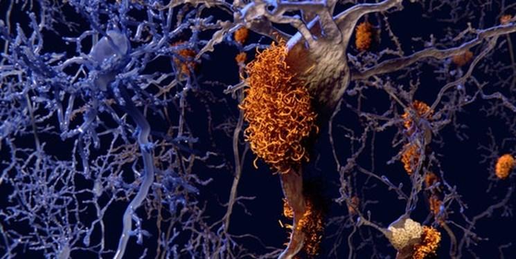 موفقیت در مدل انسانی داروی جدید آلزایمر