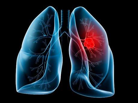 ۷ نشانه سرطان ریه در زنان