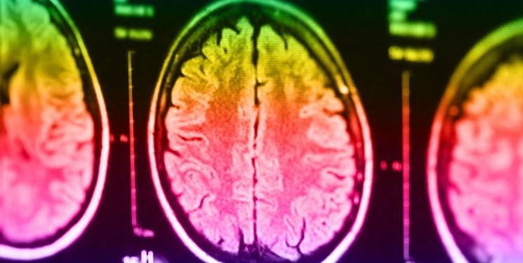 کشف اختلالات خاص مغزی در سر افراد قاتل