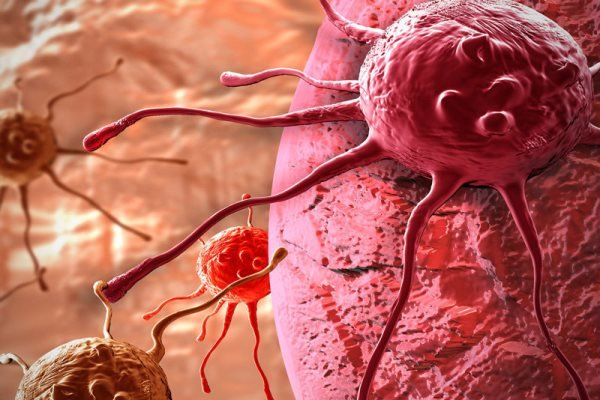 مرگ و میر واقعی ناشی از سرطان کاهش یافته است