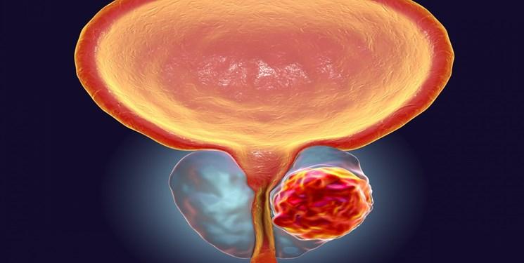 استفاده از آزمایش ادرار برای شناسایی اشکال تهاجمی سرطان پروستات