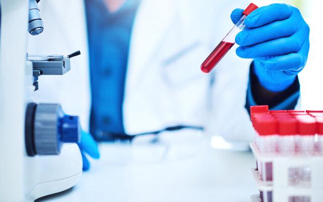 پیشبینی چندین بیماری تنها با یک نمونهگیری خونی