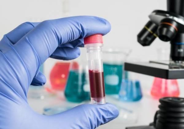 پیشبینی پیشرفت بیماری پارکینسون با یک آزمایش خون