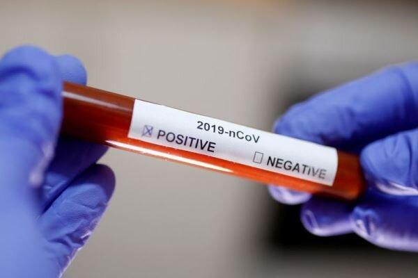 آزمایش مثبت ۲ مورد کرونا ویروس در ایران