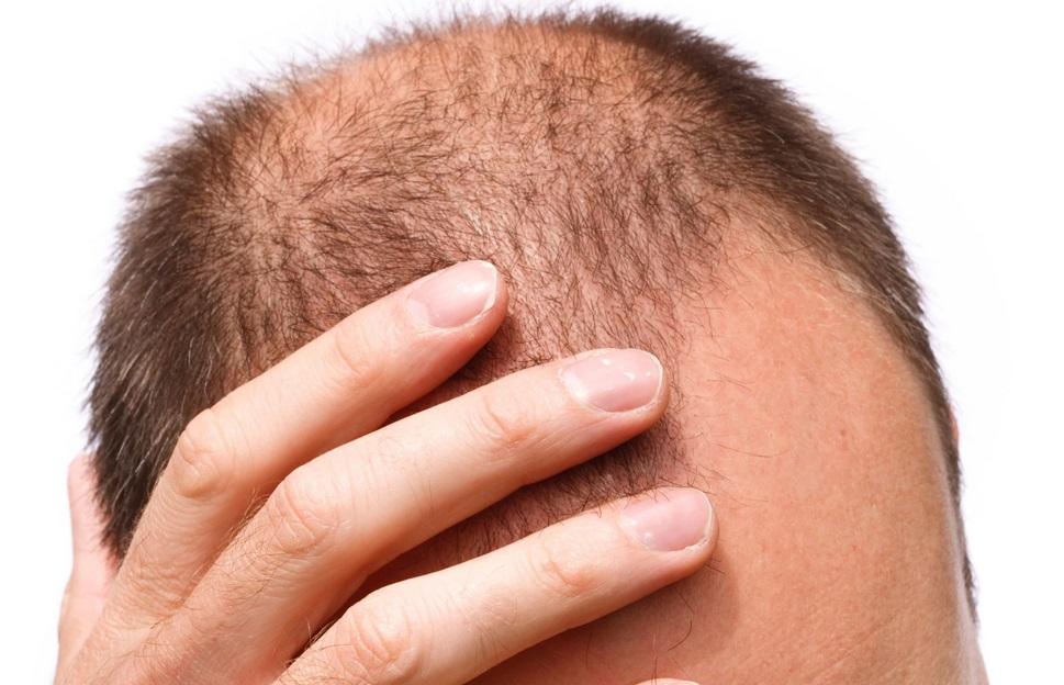 رشد مجدد مو با کمک یک محلول مبتنی بر سلولهای بنیادی