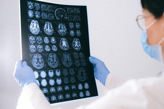 ابتلا به نوعی سرطان مغزی نادر با قرار گرفتن در معرض یک پاتوژن