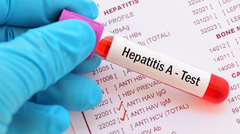 ابتلای ۱۷ نفر به هپاتیت  A در این شهر