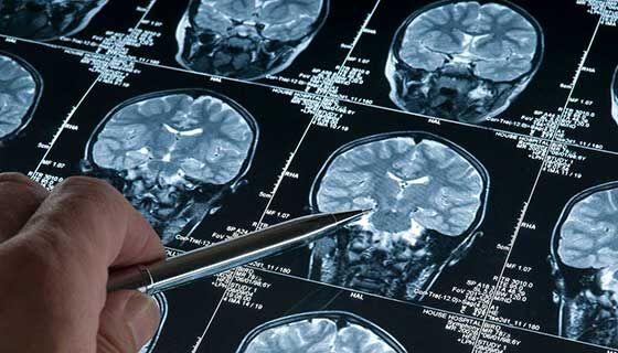 تشخیص دقیق تومور مغزی با آزمایش ادرار